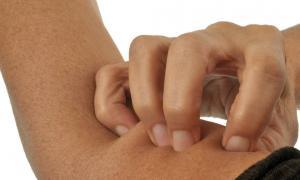 Nếu trên cơ thể có 2 vết 'ngứa', rất tiếc phải thông báo với bạn: đường huyết quá cao, hãy quan tâm kịp thời