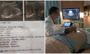 Đau bụng đi siêu âm, người đàn ông nhận tin đã có thai: Tác giả lại chính do... cô y tá
